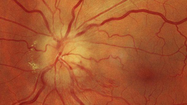 Schleier auf den Augen: Das sind die Anzeichen für einen Augeninfarkt